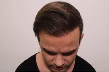 hajbeültetés árak